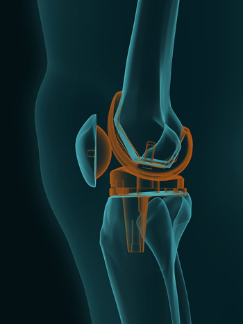 Total Knee Replacements